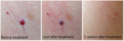angioma before and after treatment